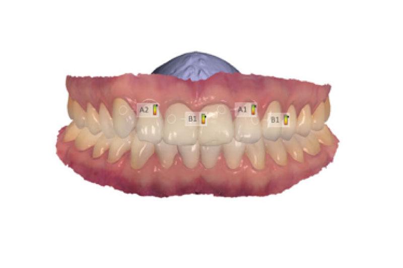 Uc dentistas escaner intraoral medicion colorimetrica